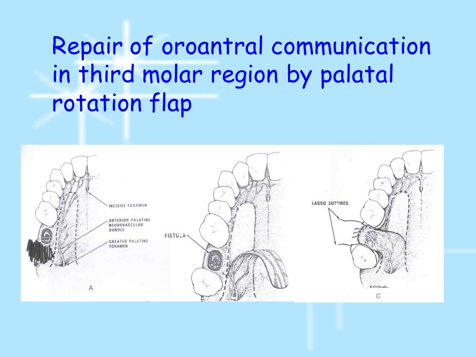 Repair of oroantral communication in third molar region by palatal rotation flap