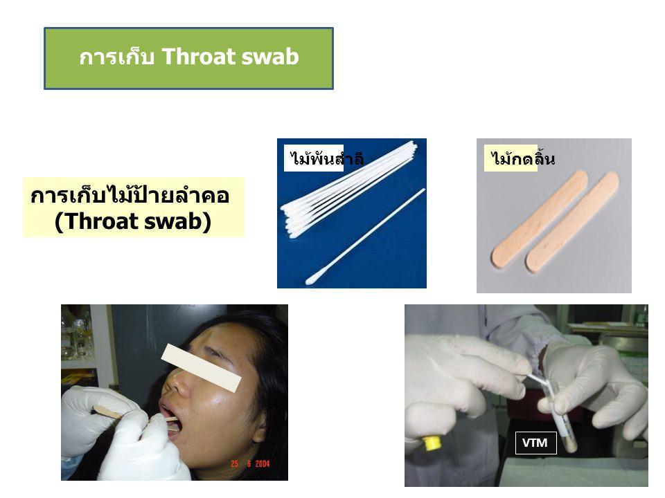 การเก็บไม้ป้ายลำคอ (Throat swab)