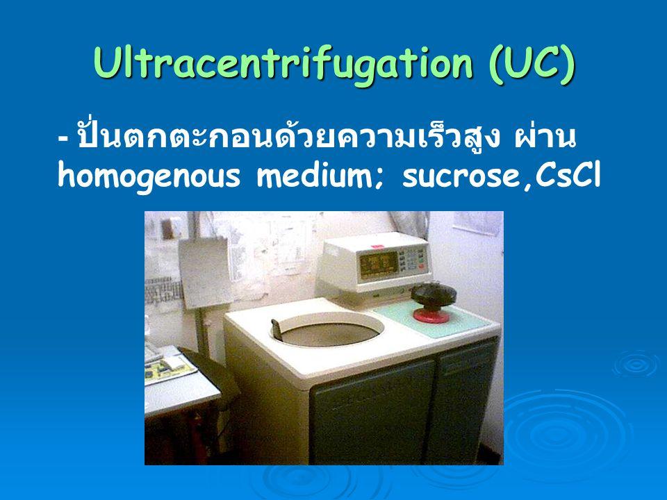 Ultracentrifugation (UC)