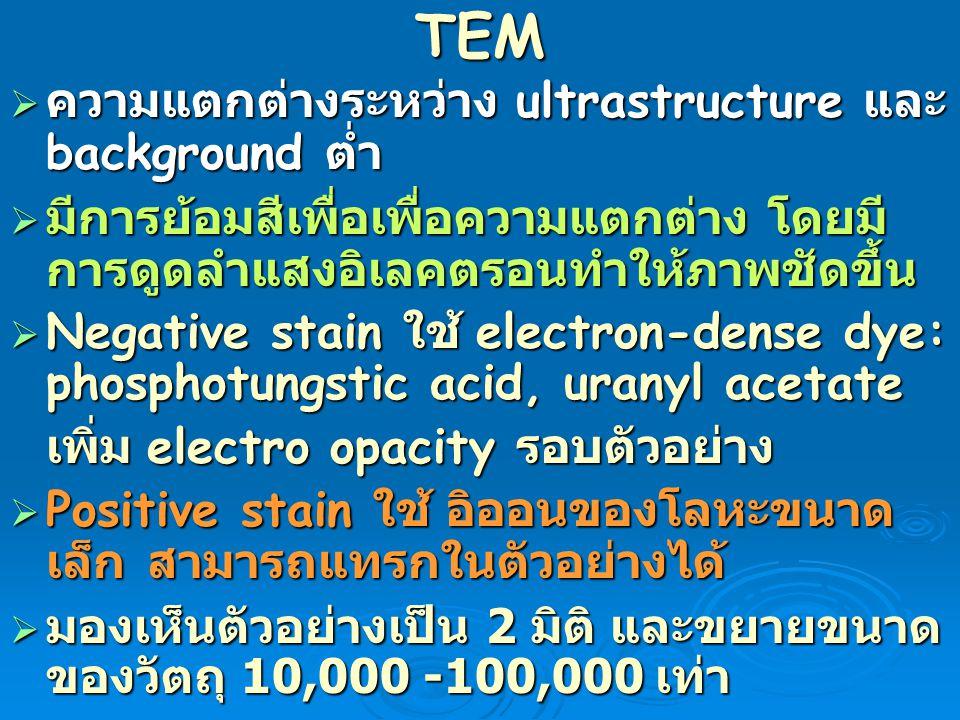 TEM ความแตกต่างระหว่าง ultrastructure และ background ต่ำ