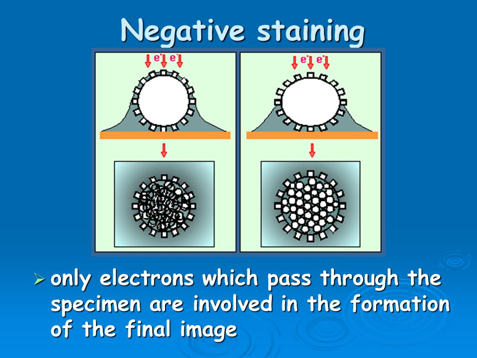 Negative staining only electrons which pass through the specimen are involved in the formation of the final image.