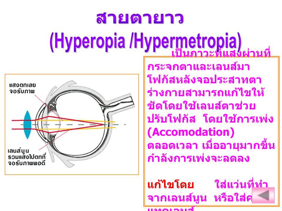 (Hyperopia /Hypermetropia)