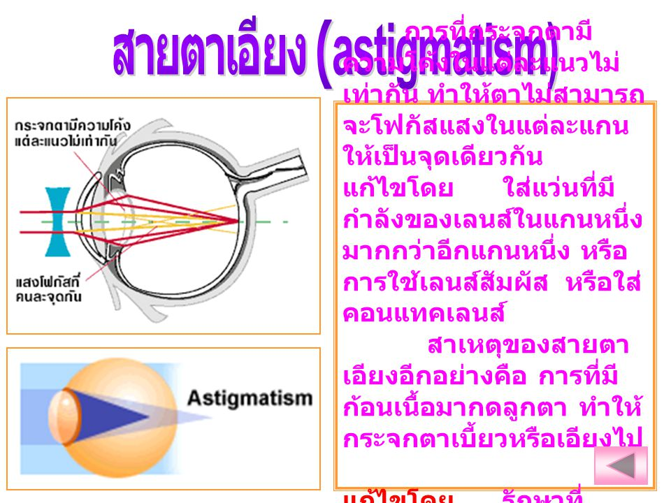 สายตาเอียง (astigmatism)