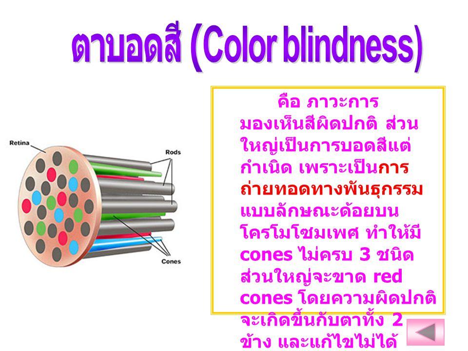 ตาบอดสี (Color blindness)
