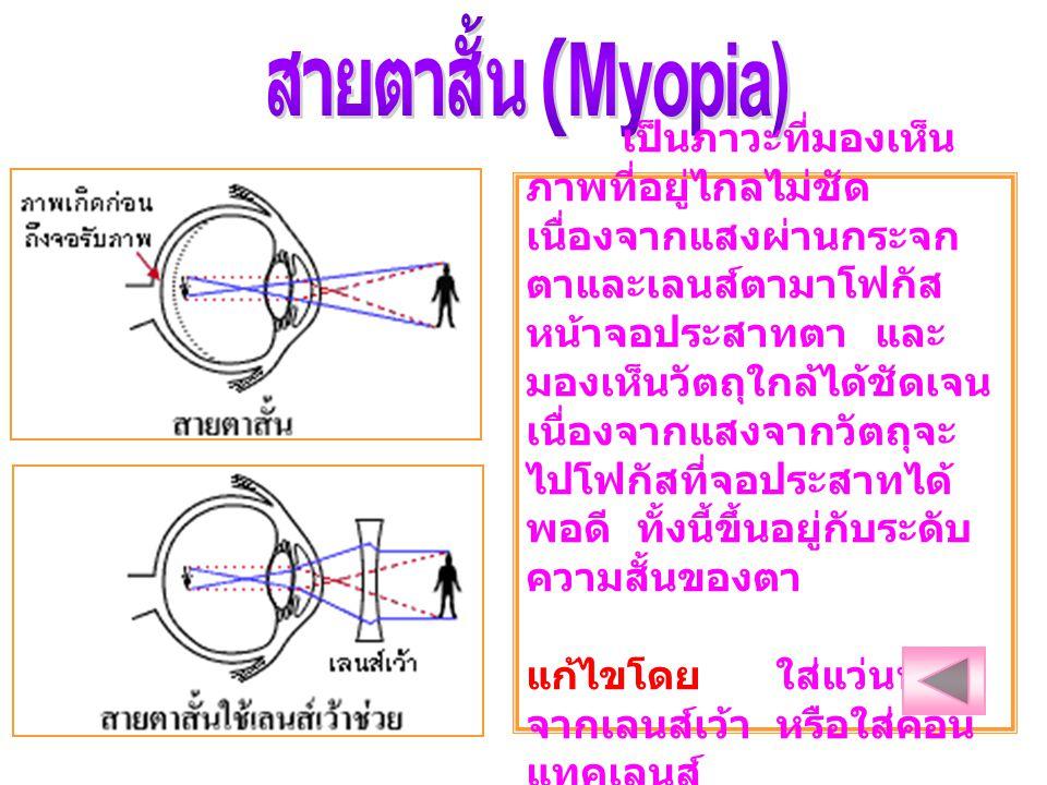 สายตาสั้น (Myopia)