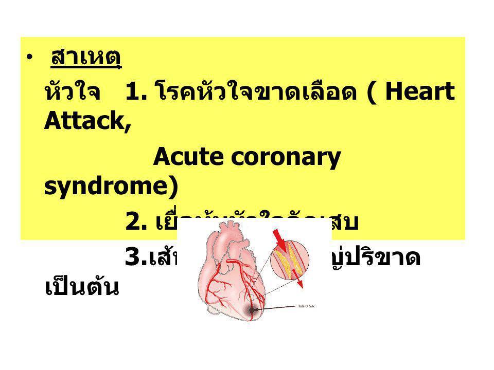 หัวใจ 1. โรคหัวใจขาดเลือด ( Heart Attack, Acute coronary syndrome)
