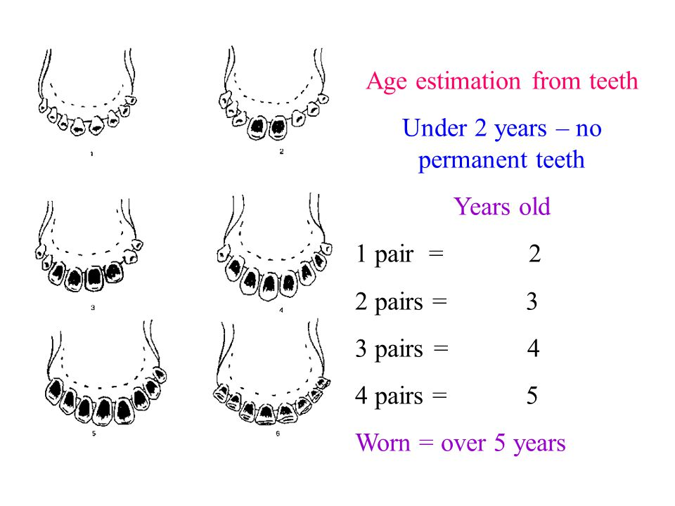 Age estimation from teeth Under 2 years – no permanent teeth Years old