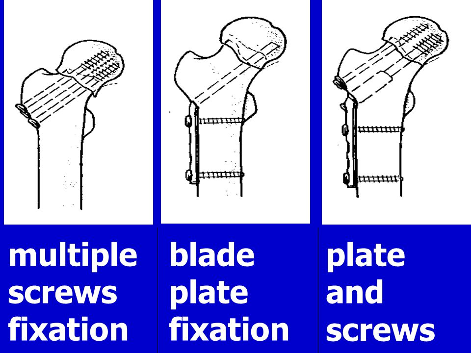 multiple screws fixation