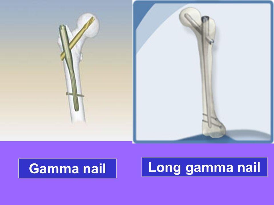Orthopedic management of osteoporosis - ppt ดาวน์โหลด