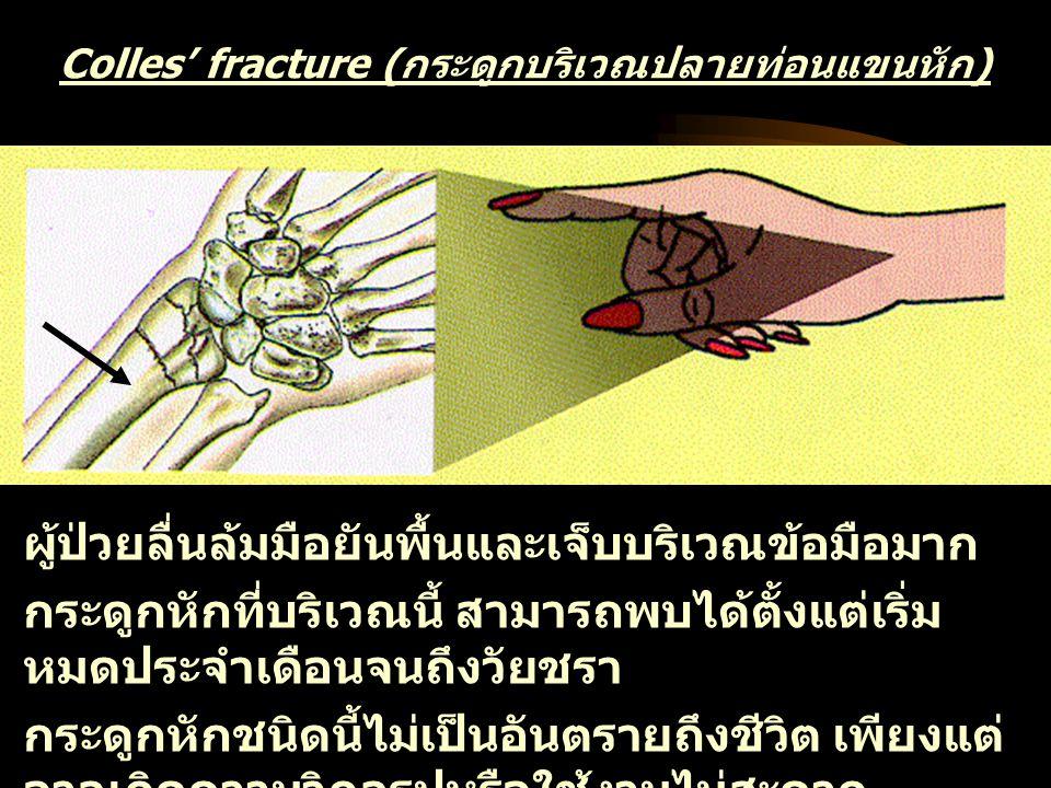 Colles' fracture (กระดูกบริเวณปลายท่อนแขนหัก)