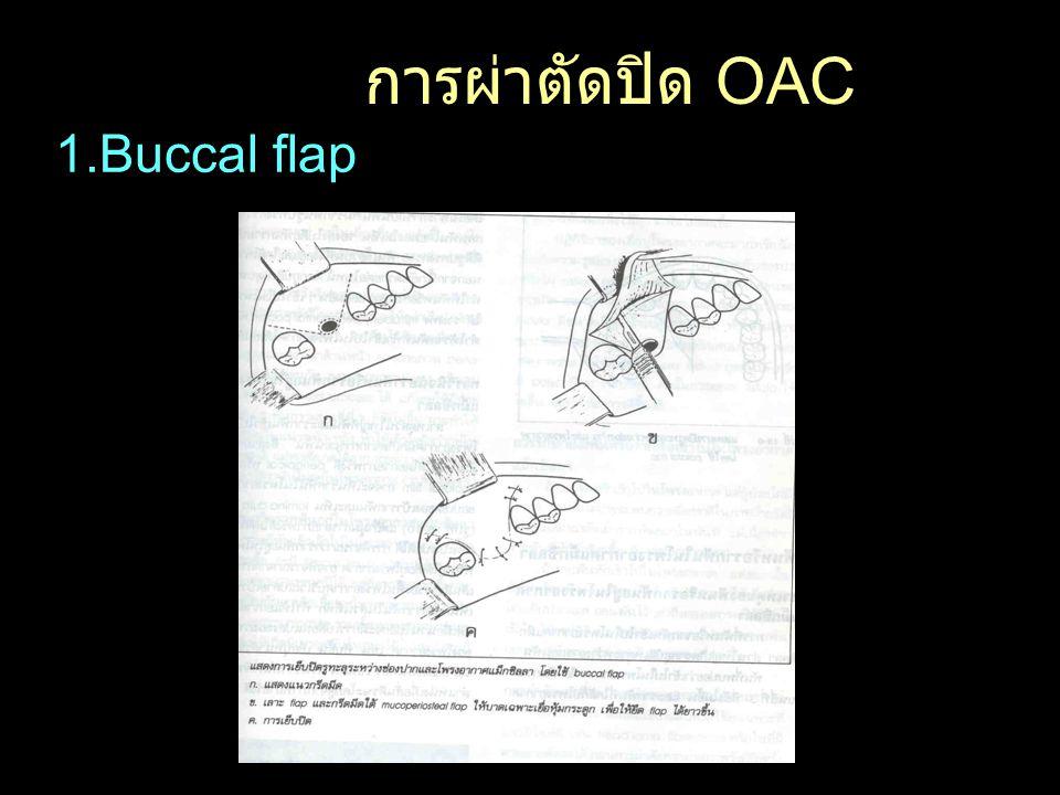 การผ่าตัดปิด OAC 1.Buccal flap