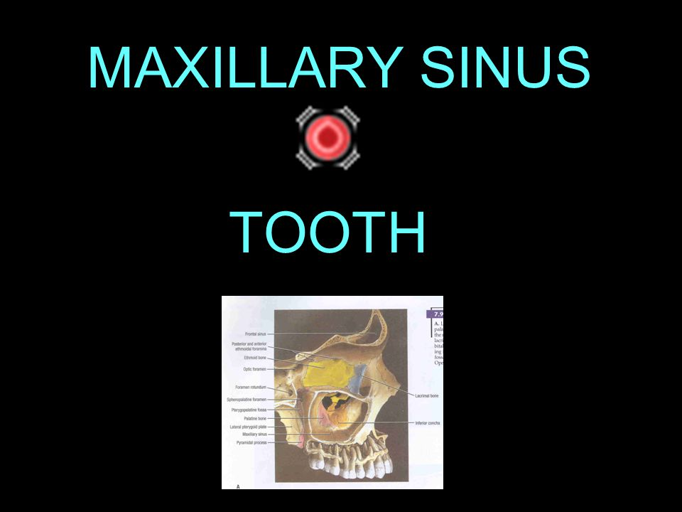 MAXILLARY SINUS TOOTH