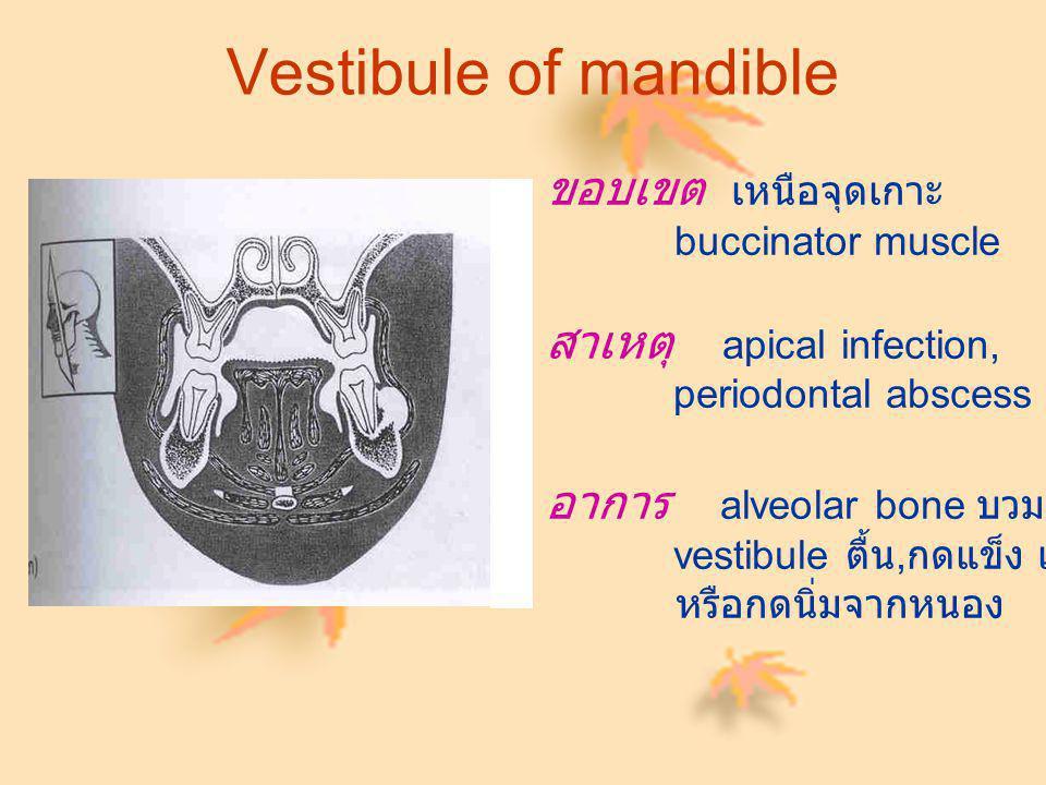 Vestibule of mandible ขอบเขต เหนือจุดเกาะ สาเหตุ apical infection,