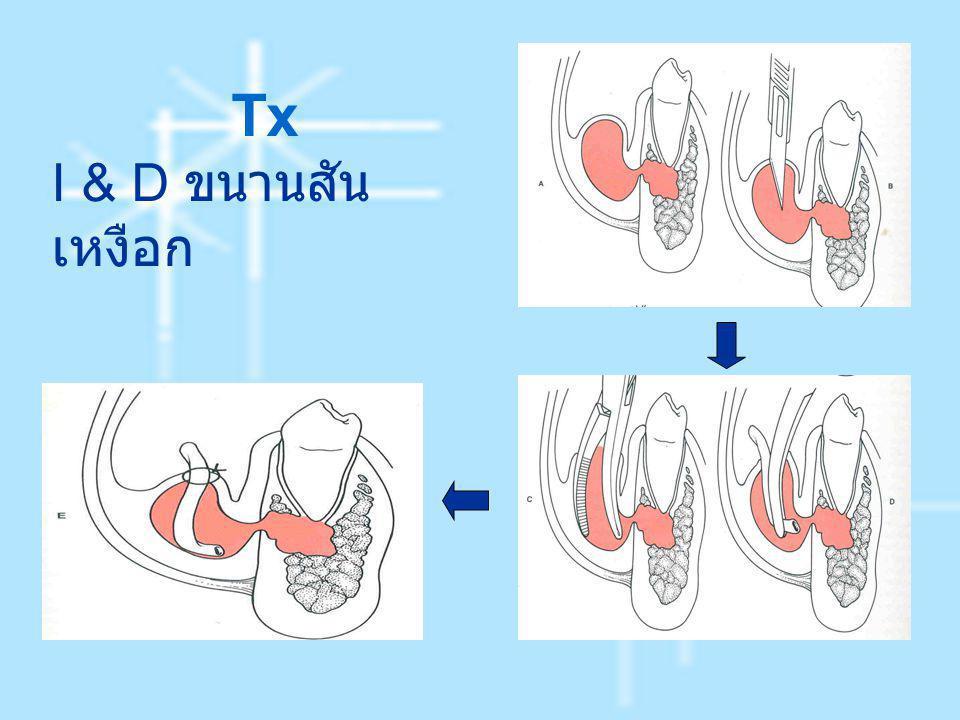 Tx I & D ขนานสันเหงือก