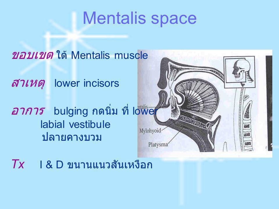 Mentalis space ขอบเขต ใต้ Mentalis muscle สาเหตุ lower incisors