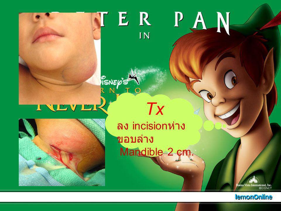 Tx ลง incisionห่างขอบล่าง Mandible 2 cm.