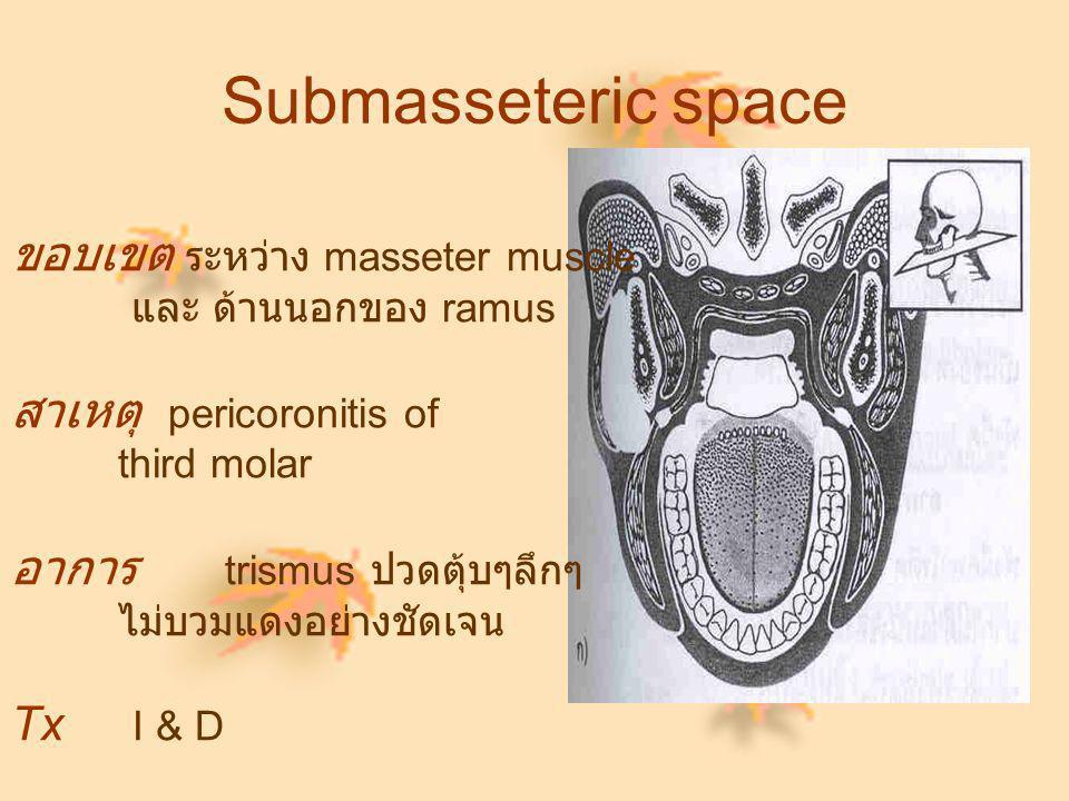 Submasseteric space ขอบเขต ระหว่าง masseter muscle