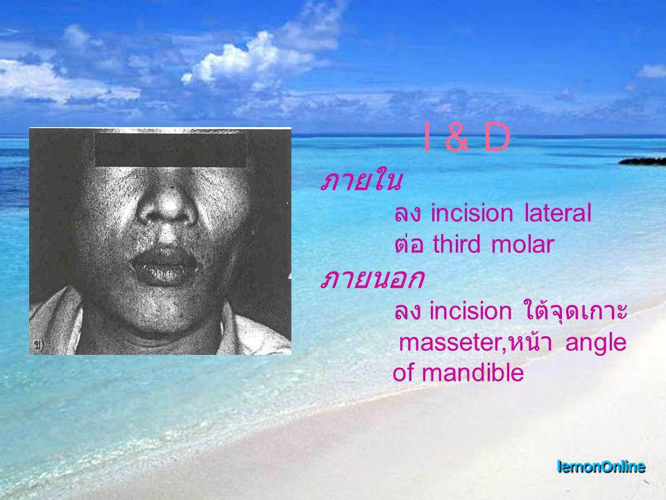ภายใน ภายนอก I & D ลง incision lateral ต่อ third molar