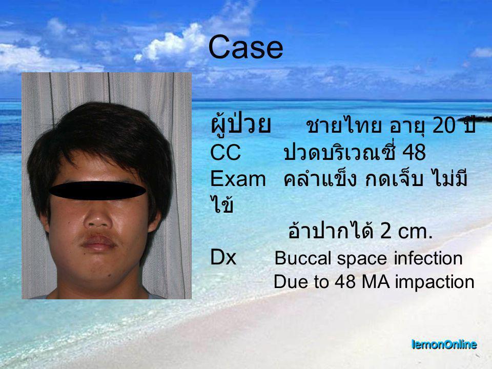 Case ผู้ป่วย ชายไทย อายุ 20 ปี CC ปวดบริเวณซี่ 48