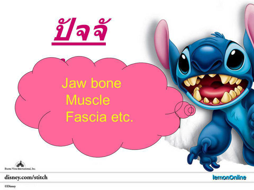 ปัจจัย Jaw bone Muscle Fascia etc.
