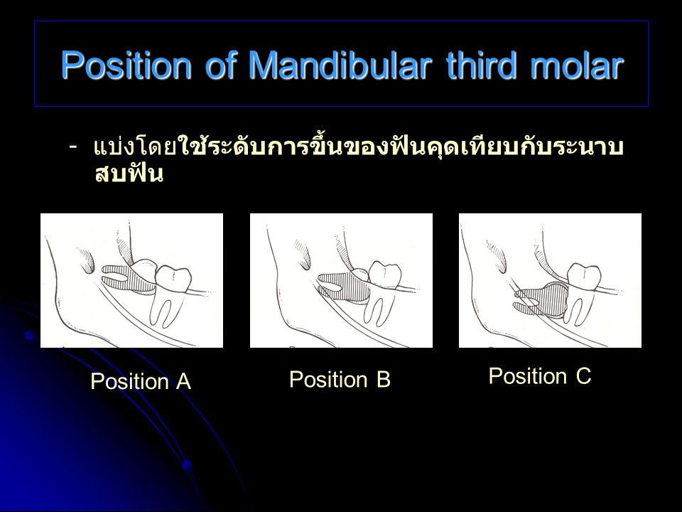Position of Mandibular third molar