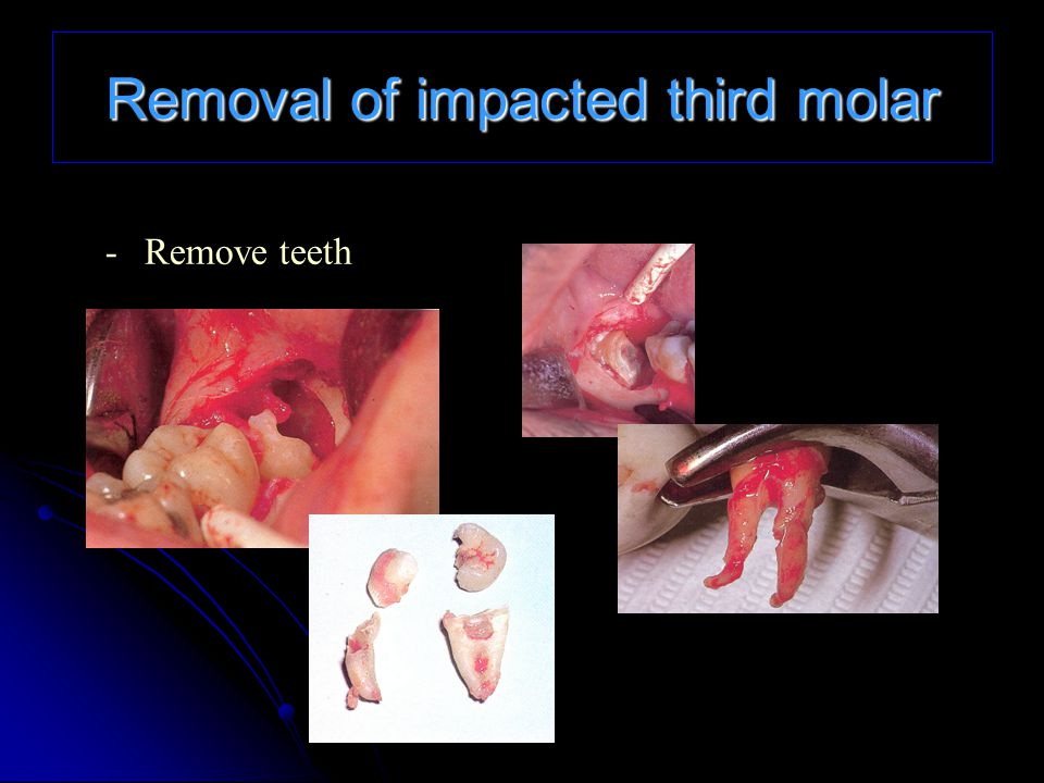 Removal of impacted third molar
