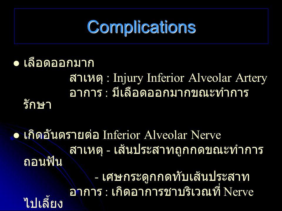 Complications เลือดออกมาก สาเหตุ : Injury Inferior Alveolar Artery