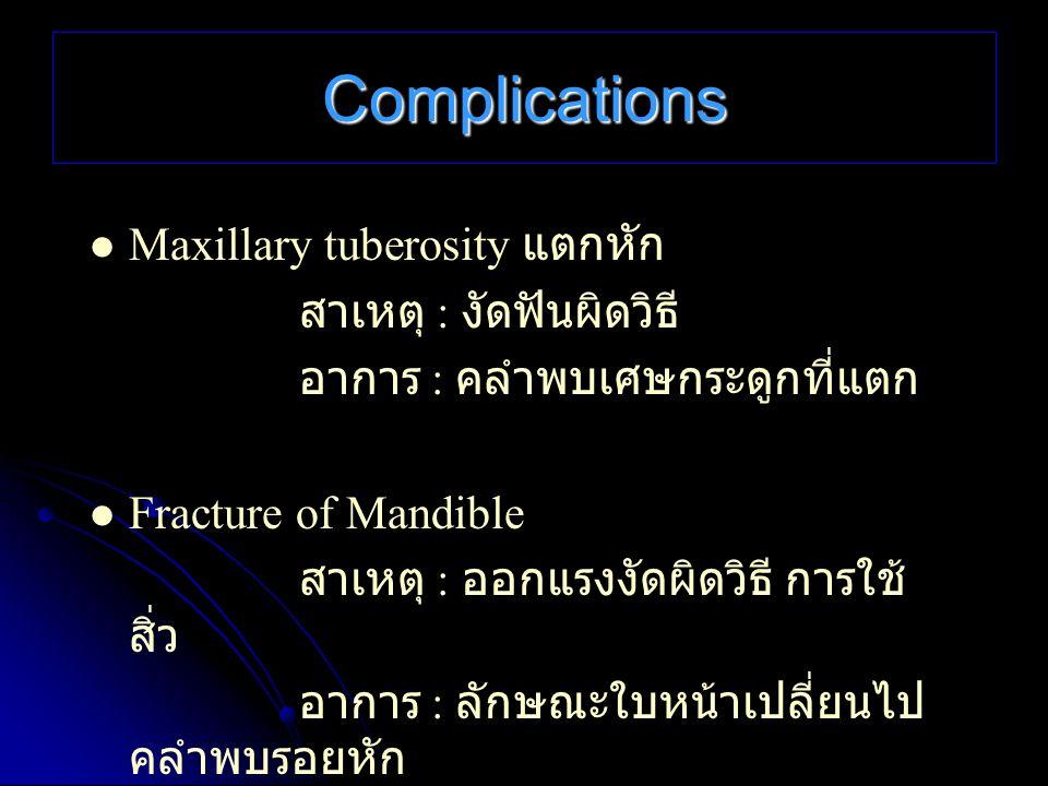 Complications Maxillary tuberosity แตกหัก สาเหตุ : งัดฟันผิดวิธี
