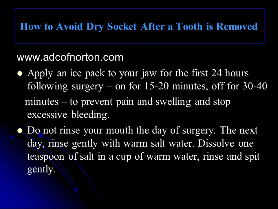 How to Avoid Dry Socket After a Tooth is Removed
