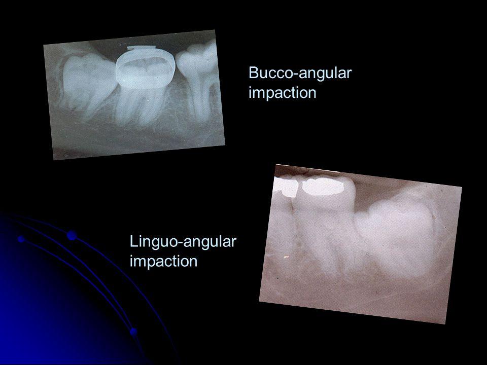 Bucco-angular impaction