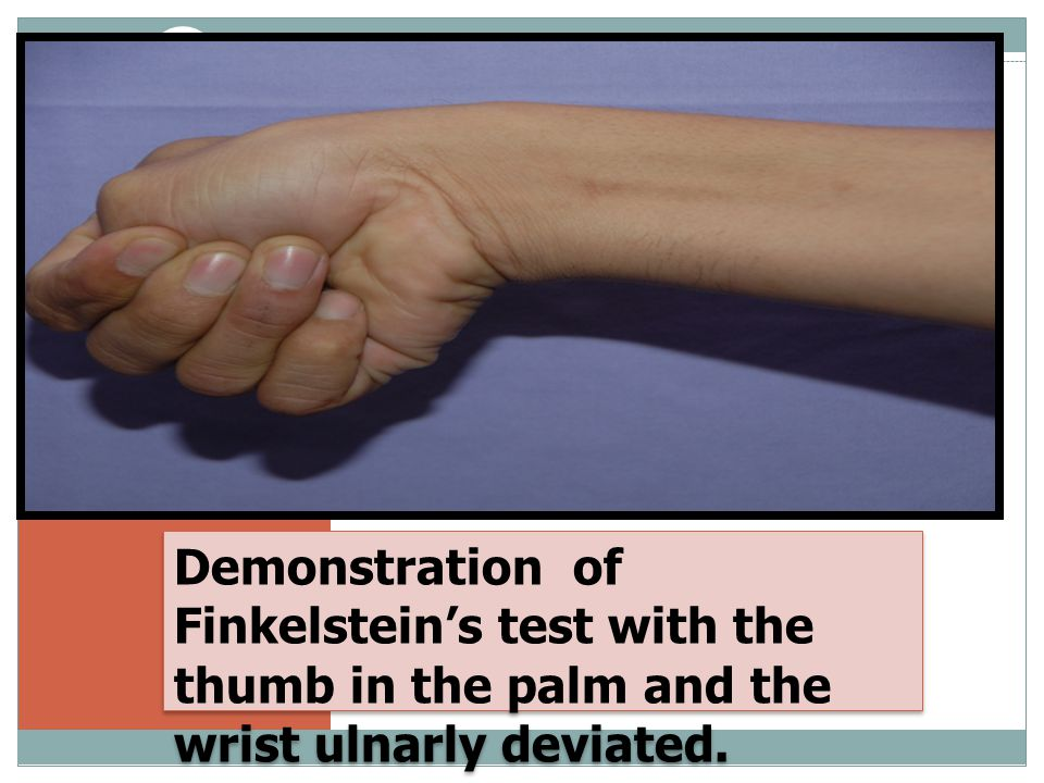 Demonstration of Finkelstein's test with the thumb in the palm and the wrist ulnarly deviated.