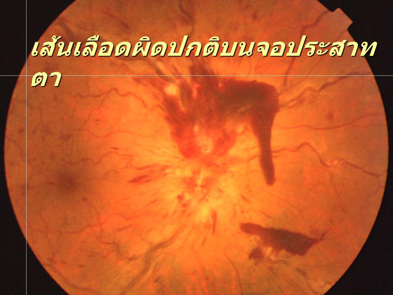 เส้นเลือดผิดปกติบนจอประสาทตา