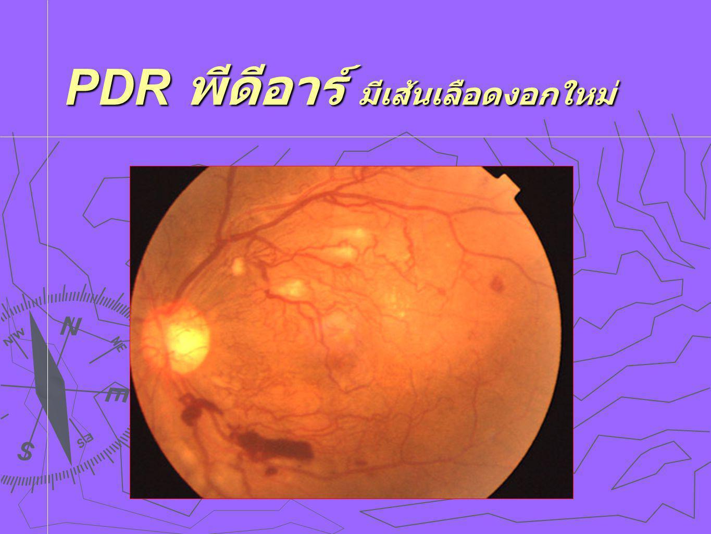 PDR พีดีอาร์ มีเส้นเลือดงอกใหม่