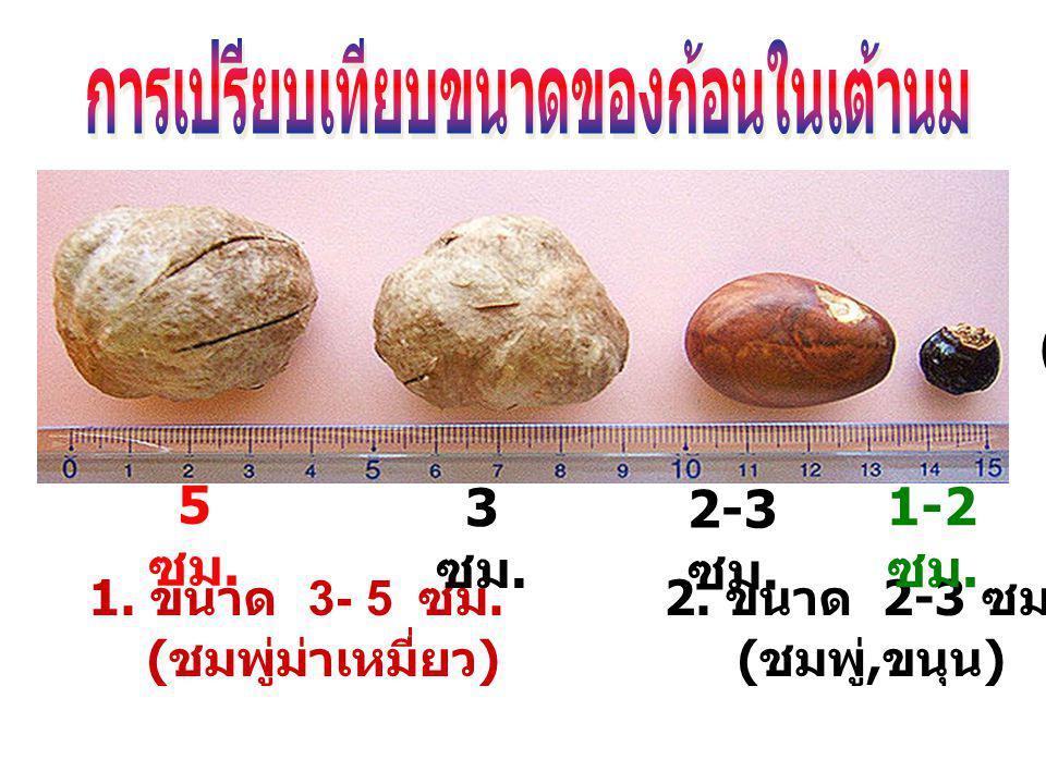 การเปรียบเทียบขนาดของก้อนในเต้านม