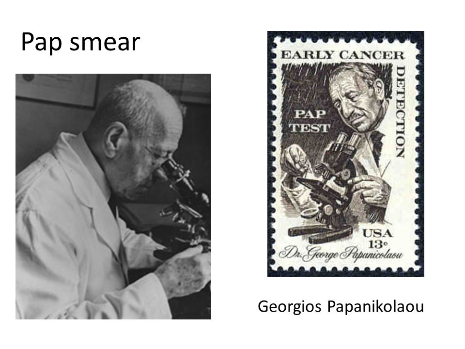 Pap smear Georgios Papanikolaou