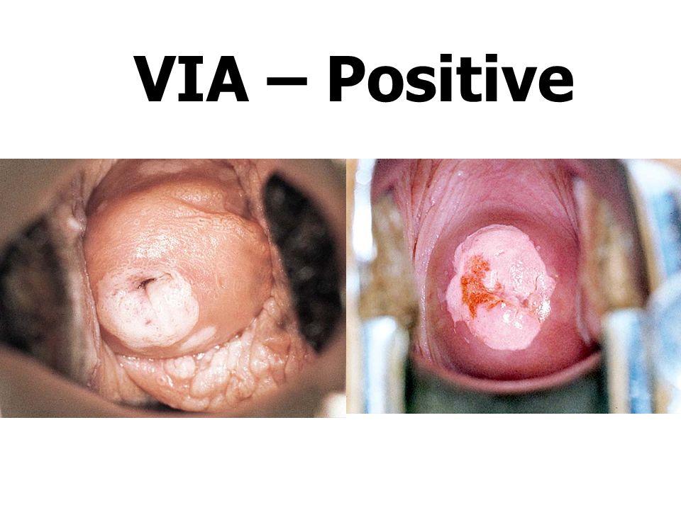 VIA – Positive