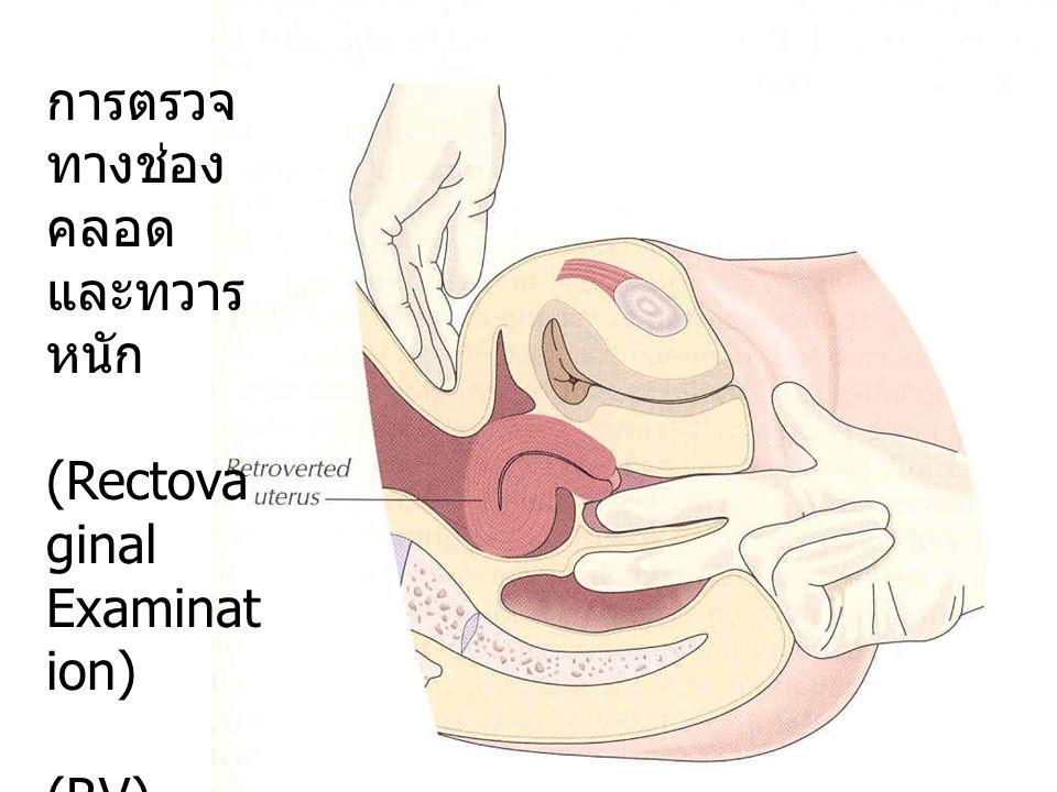 การตรวจ ทางช่องคลอด และทวารหนัก (Rectovaginal Examination) (RV)