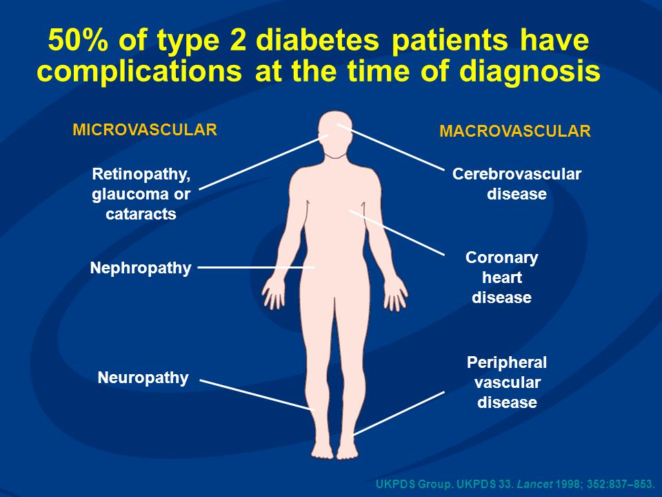 50% of type 2 diabetes patients have complications at the time of diagnosis