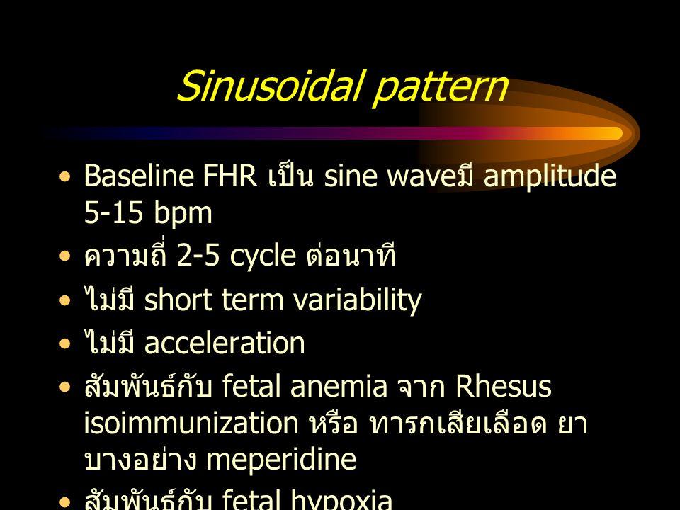 Sinusoidal pattern Baseline FHR เป็น sine waveมี amplitude 5-15 bpm