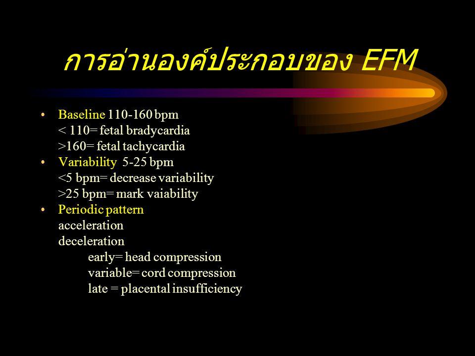 การอ่านองค์ประกอบของ EFM