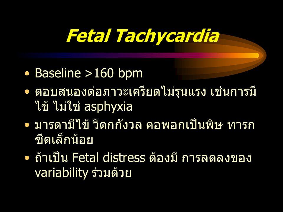 Fetal Tachycardia Baseline >160 bpm