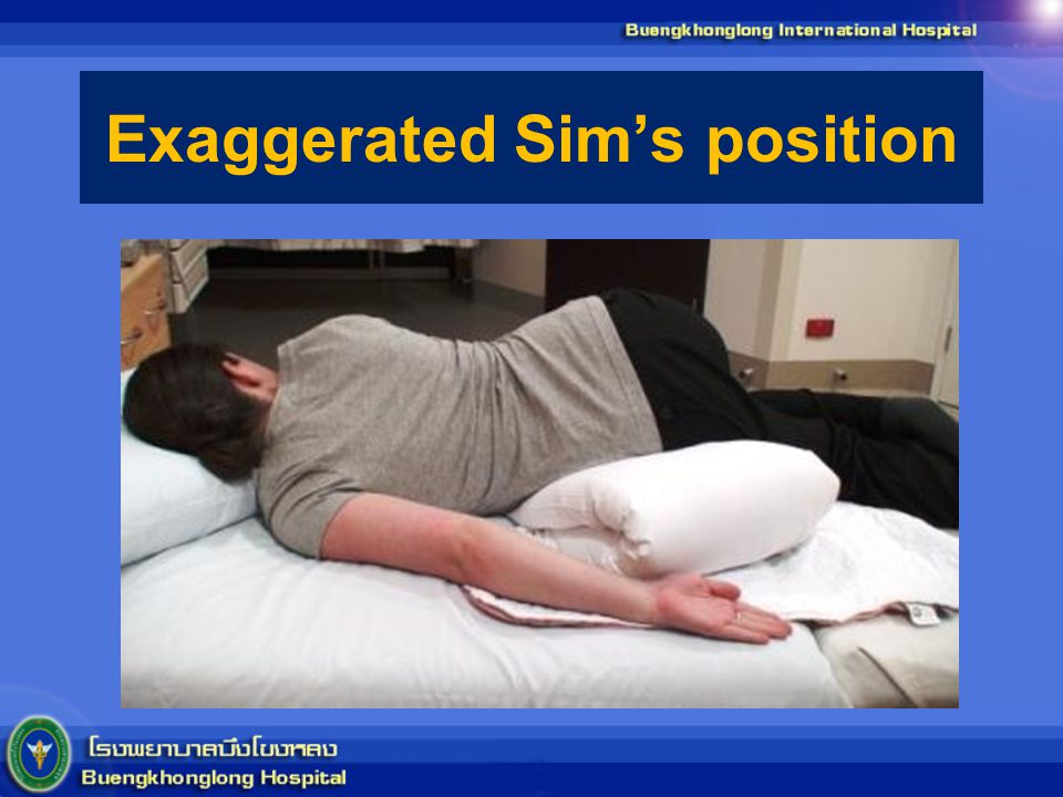 Exaggerated Sim's position