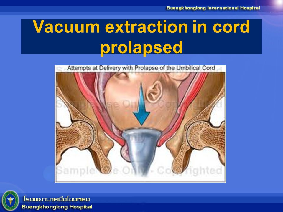 Vacuum extraction in cord prolapsed