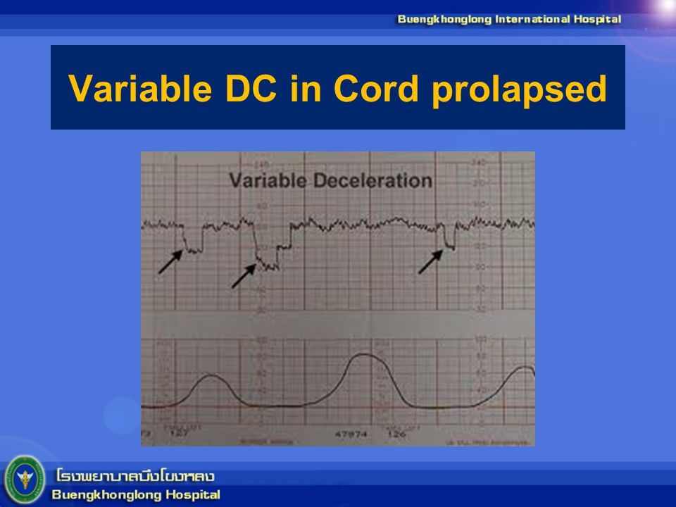 Variable DC in Cord prolapsed