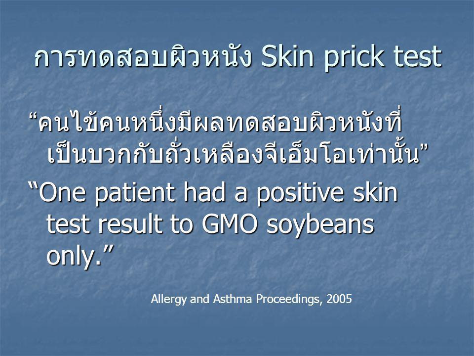 การทดสอบผิวหนัง Skin prick test