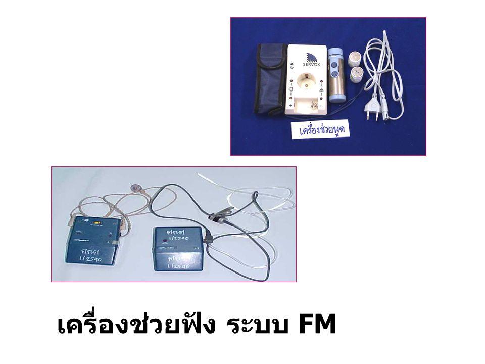เครื่องช่วยฟัง ระบบ FM