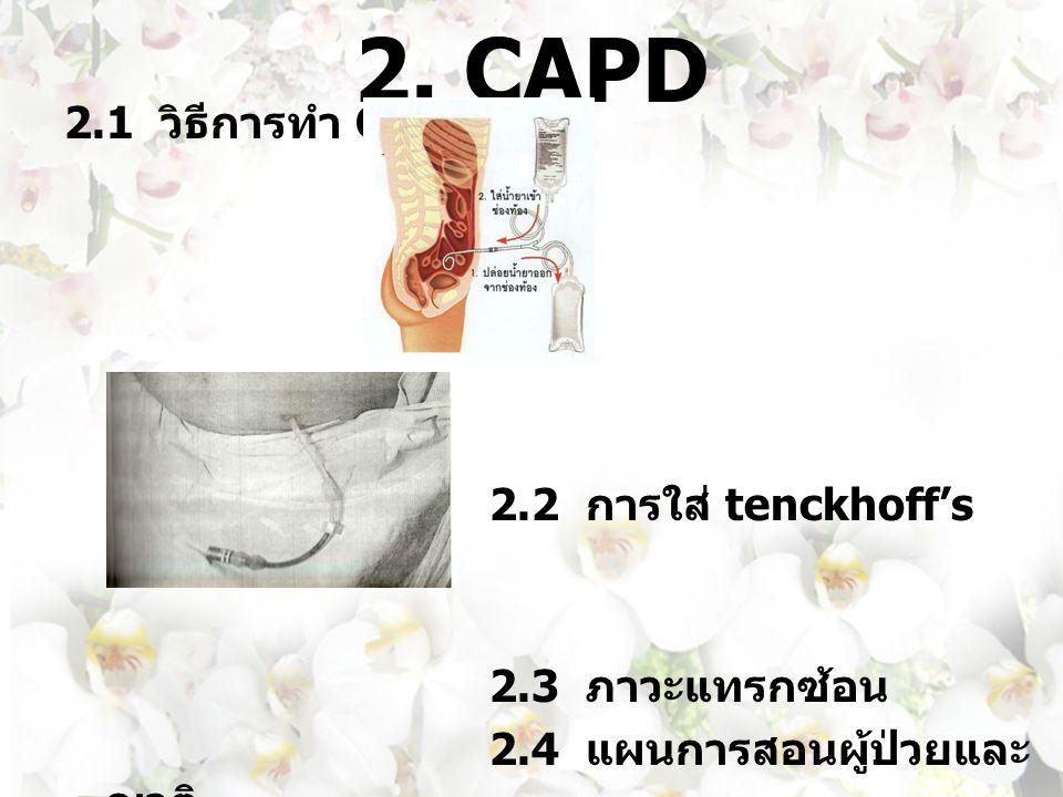 2. CAPD 2.1 วิธีการทำ CAPD 2.2 การใส่ tenckhoff's catheter