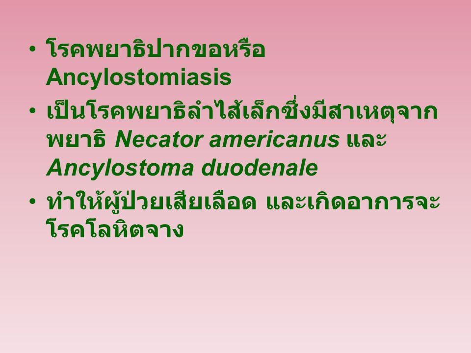 โรคพยาธิปากขอหรือ Ancylostomiasis