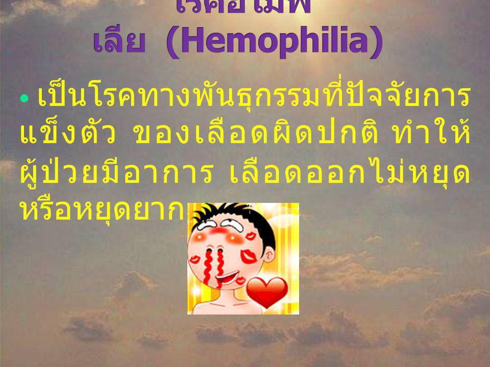 โรคฮีโมฟิเลีย (Hemophilia)