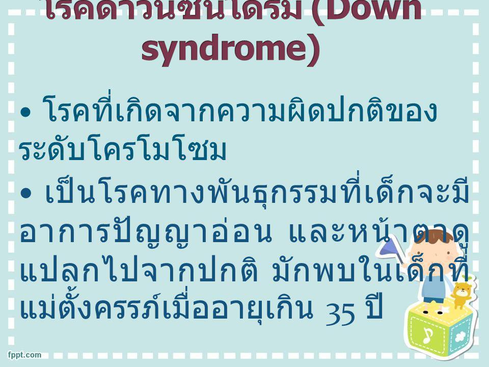 โรคดาวน์ซินโดรม (Down syndrome)